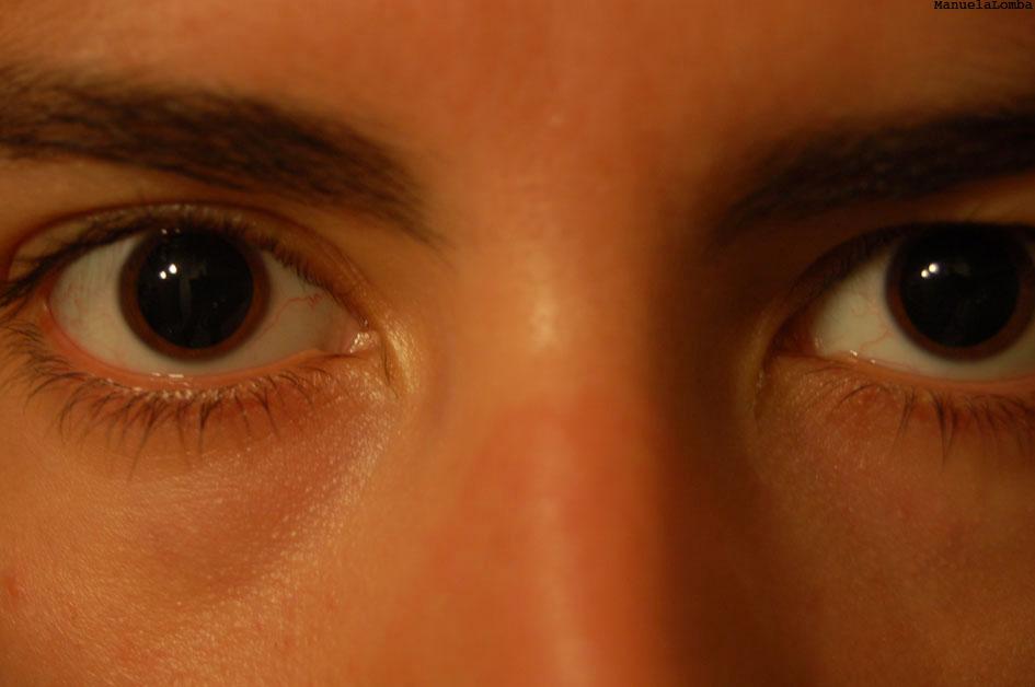 MA-Olho-dilatados