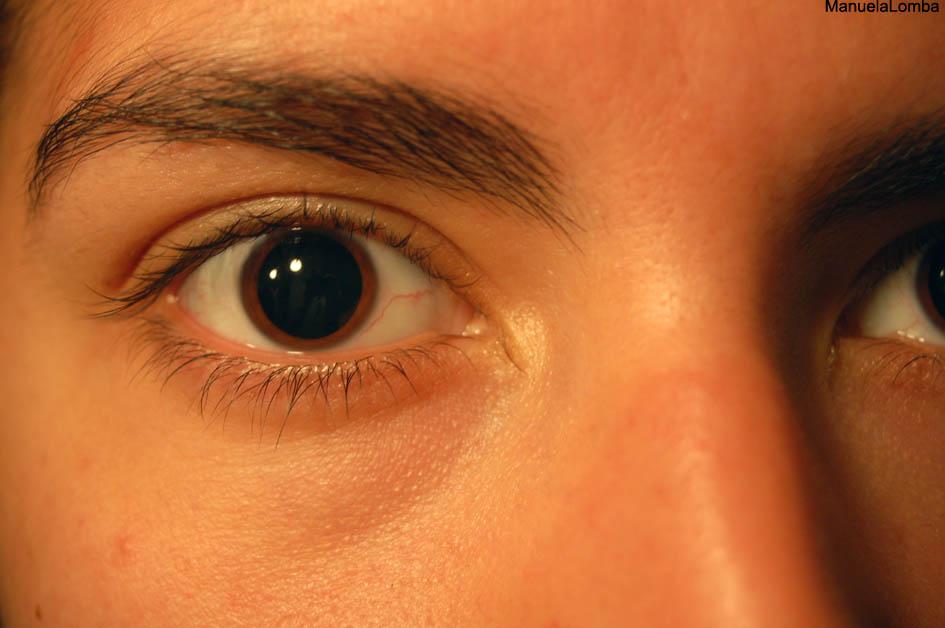 MA-Olho-irisnoporto